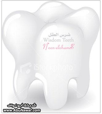 """ضرس العقل بالصور""""Wisdom Teeth""""  3"""