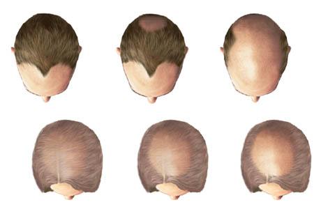 علاج تساقط الشعر طبيعيا